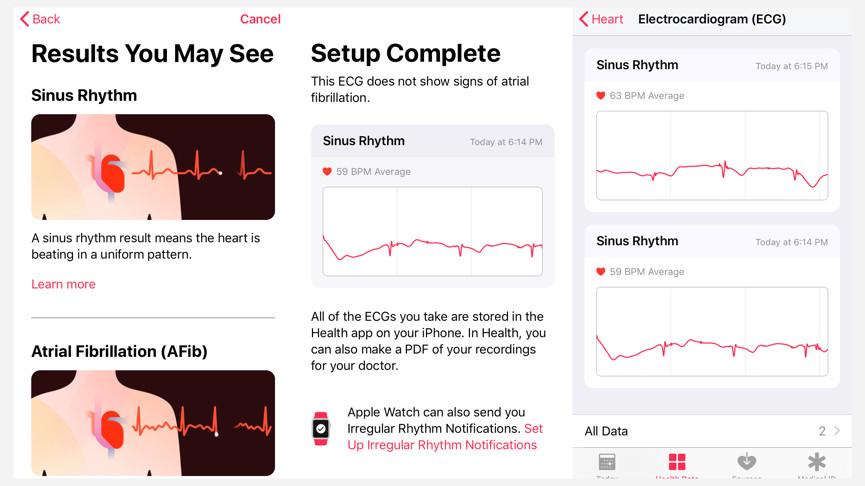 ЭКГ: как подключить технологию для серьезного отслеживания здоровья